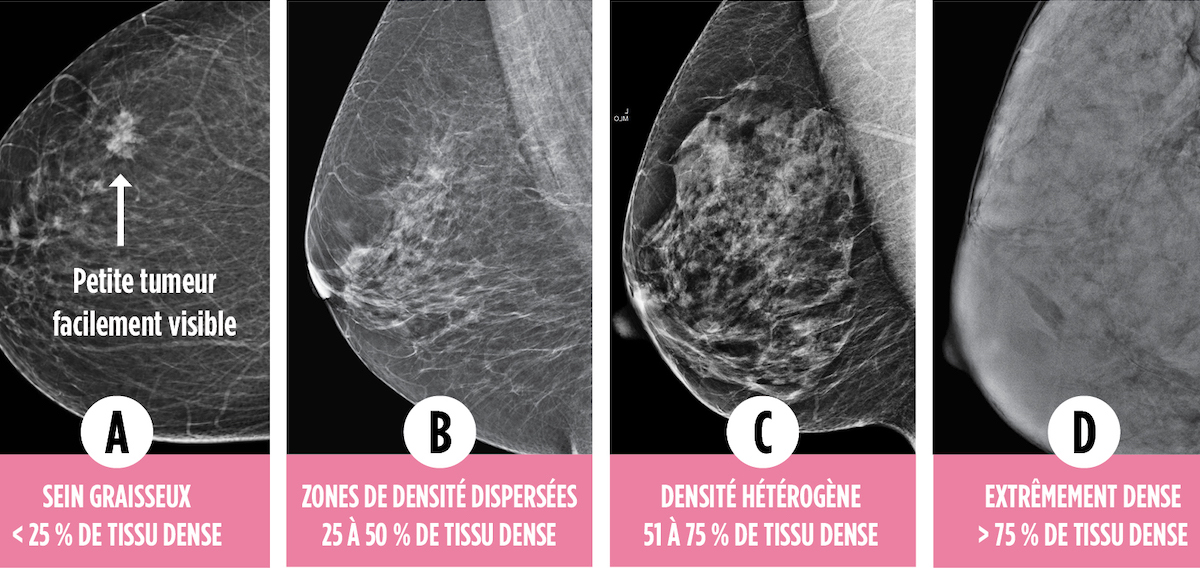 Mammogram showing breats density