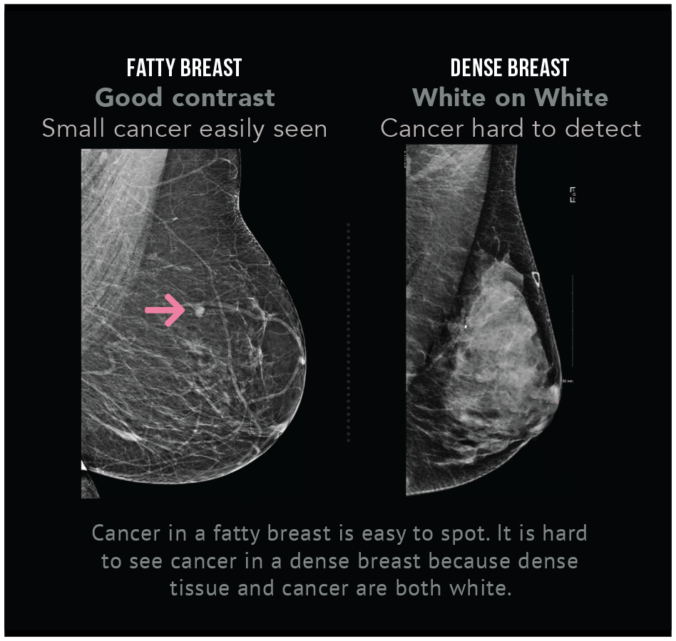 Get Informed Dense Breasts Canada Find Out Your Breast Density